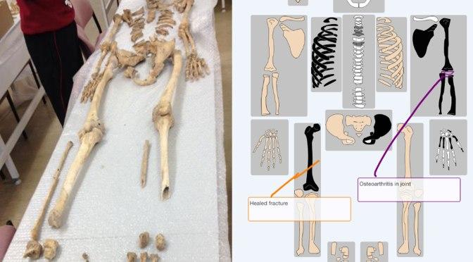 Digital bones
